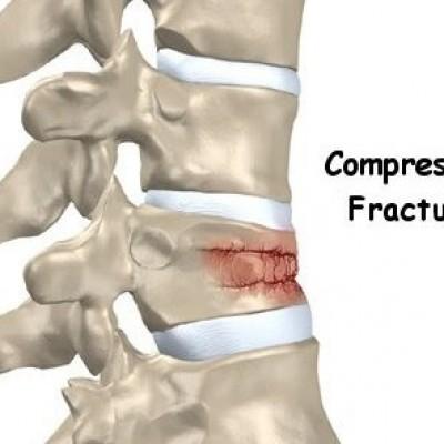 Dureri de spate cu tratament herniene spinale