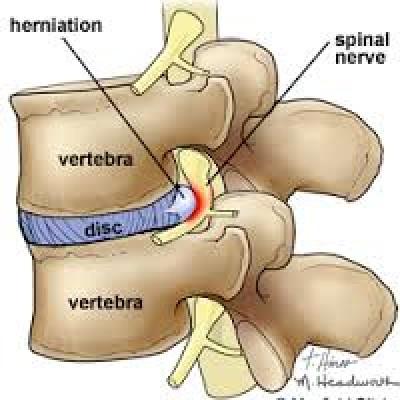Tragerea durerii de spate se extinde spre partea dreapta